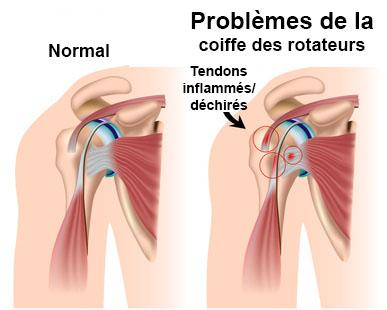 tendons inflammés tendinite épaule